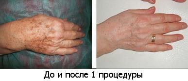 Программа похудения скакалка