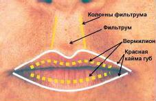 Коррекция губ